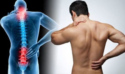 Complete Guide to Back Pain