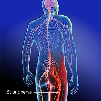Physical Therapy for Sciatica